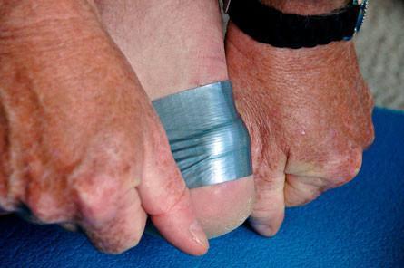 Pred žulji se zaščitite z lepilnim trakom