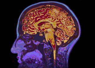 pretres možganov